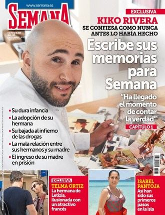 SEMANA Carlos Lozano debe cuidar su injerto capilar en 'Supervivientes'