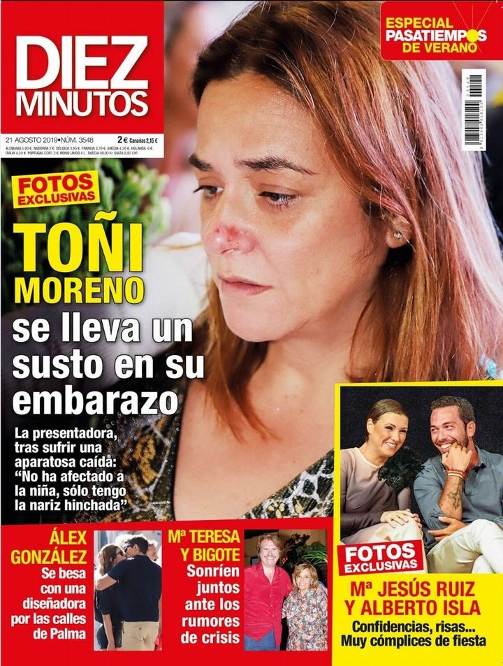 DIEZ MINUTOS Así quedó Toñi Moreno tras caer de bruces