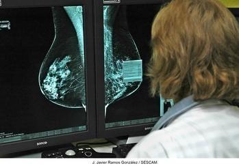 El programa de detección precoz de cáncer de mama alcanza en la provincia de Guadalajara su máxima participación, con más del 80%