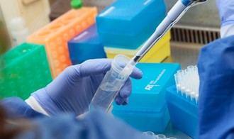 Muere por el coronavirus un hombre de 39 años SIN patologías previas