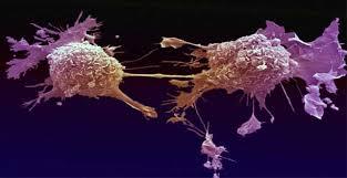Dos de cada tres cánceres se deben