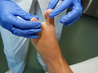 El SESCAM ha ofrecido más de 5.300 tratamientos podológicos gratuitos a pacientes diabéticos
