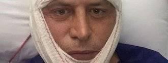 Así ha quedado Kiko Matamoros tras su operación facial