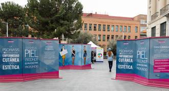 """La exposición """"Psoriasis, lo que la piel esconde"""" cambia de ubicación al centro comercial Ferial Plaza"""
