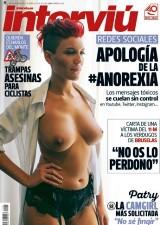 INTERVIU: Las redes de la Anorexia