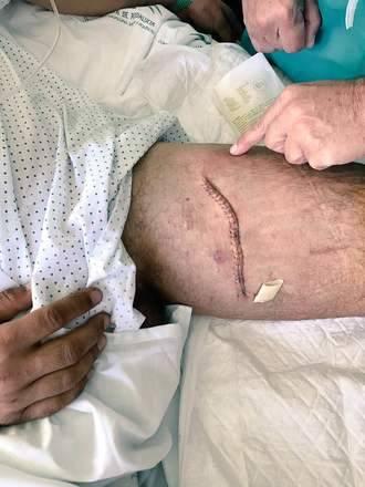 Iván Fandiño ya se recupera de la cornada sufrida en Úbeda el pasado domingo
