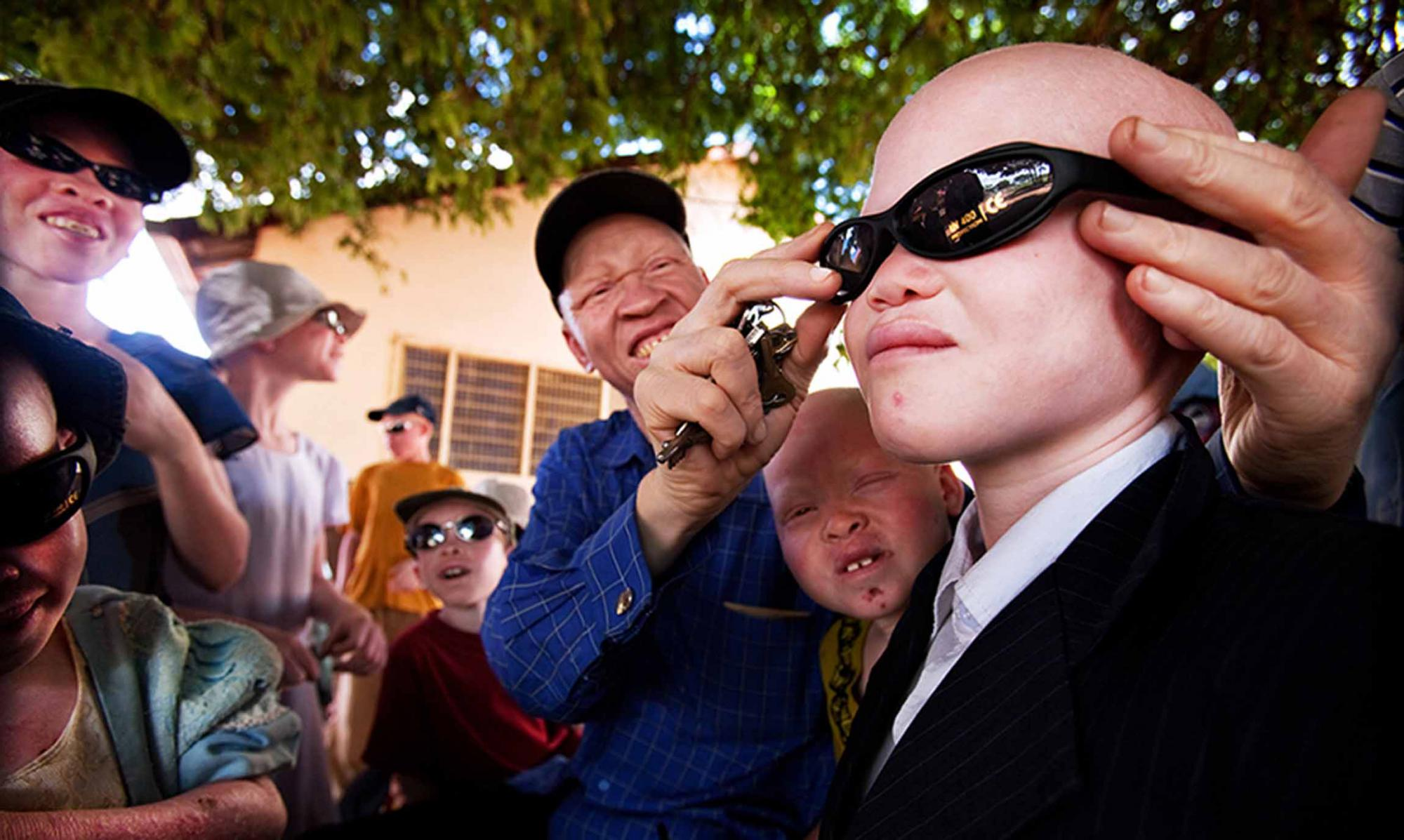 Profesionales del Hospital de Guadalajara recogen de gafas de sol ...