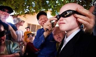 Profesionales del Hospital de Guadalajara recogen de gafas de sol para la población albina de Tanzania